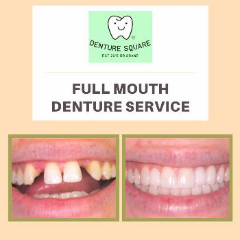 Full Permanent Dentures Benefits of full permanent dentures: 1.Restore their 2.Support for and 3.Ab